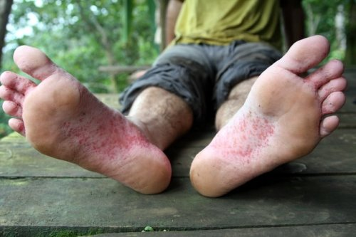 Foot rot.